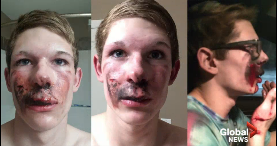 A 16-Year-Old Teen Suffered Second Degree Burns When an E-Cigarette Exploded in His Face