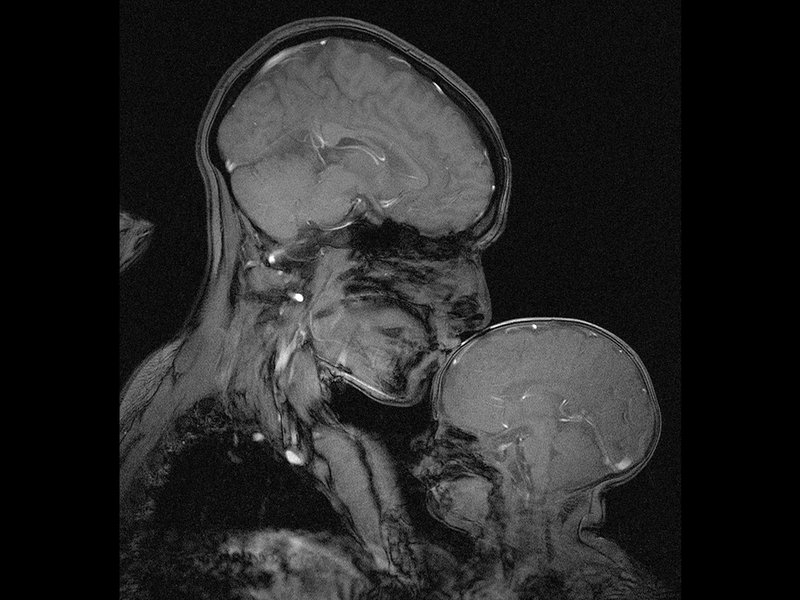 This Brain Scan Image Illustrates the Powerful Bond Between Mother and Child